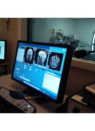"""""""Senza nuove assunzioni i servizi di radiologia rischiano il blocco"""". Situazione da risolvere anche alla Gruccia"""